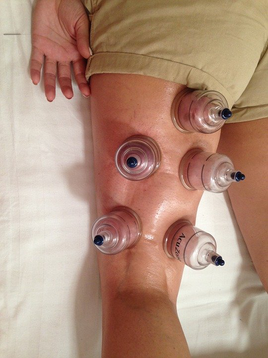 How Effective is Cupping Therapy?