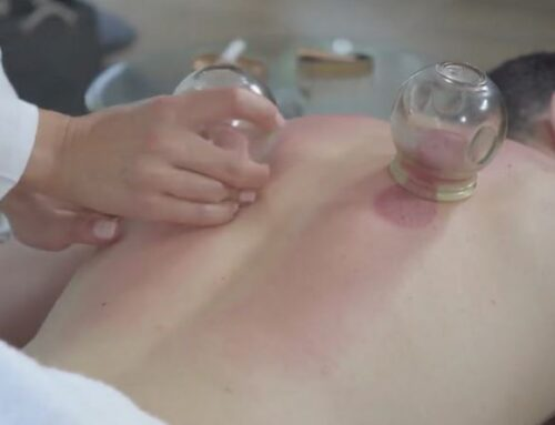 Cupping Therapy Is For More Than Just Pain