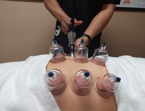 Cupping for Weight Loss: real footage